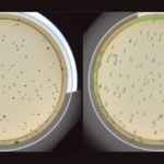 Petrilyzer Petri Dish. Automatic identification and classification of colonies on a media plate.